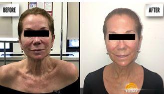 Aerolase Skin Therapy
