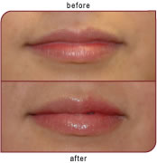 before and after lips - lip fillers
